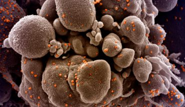 celula atacata coronavirus